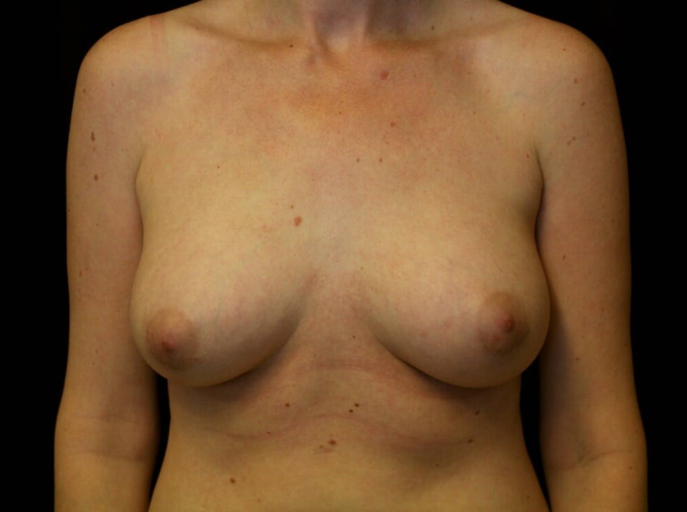 Breast Augmentation Gallery - Patient 39245556 - Image 2