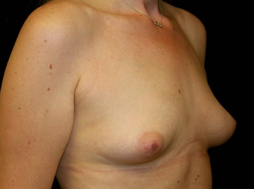 Breast Augmentation Gallery - Patient 39245556 - Image 3