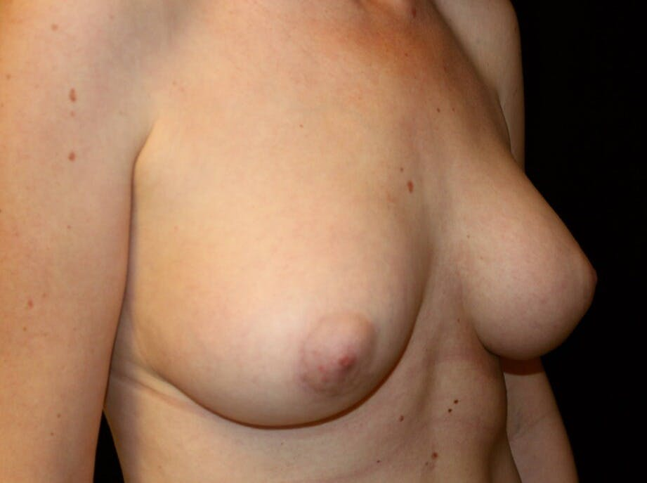 Breast Augmentation Gallery - Patient 39245556 - Image 4
