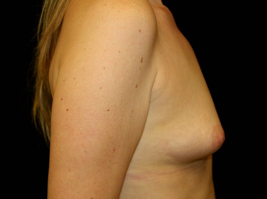 Breast Augmentation Gallery - Patient 39245556 - Image 5