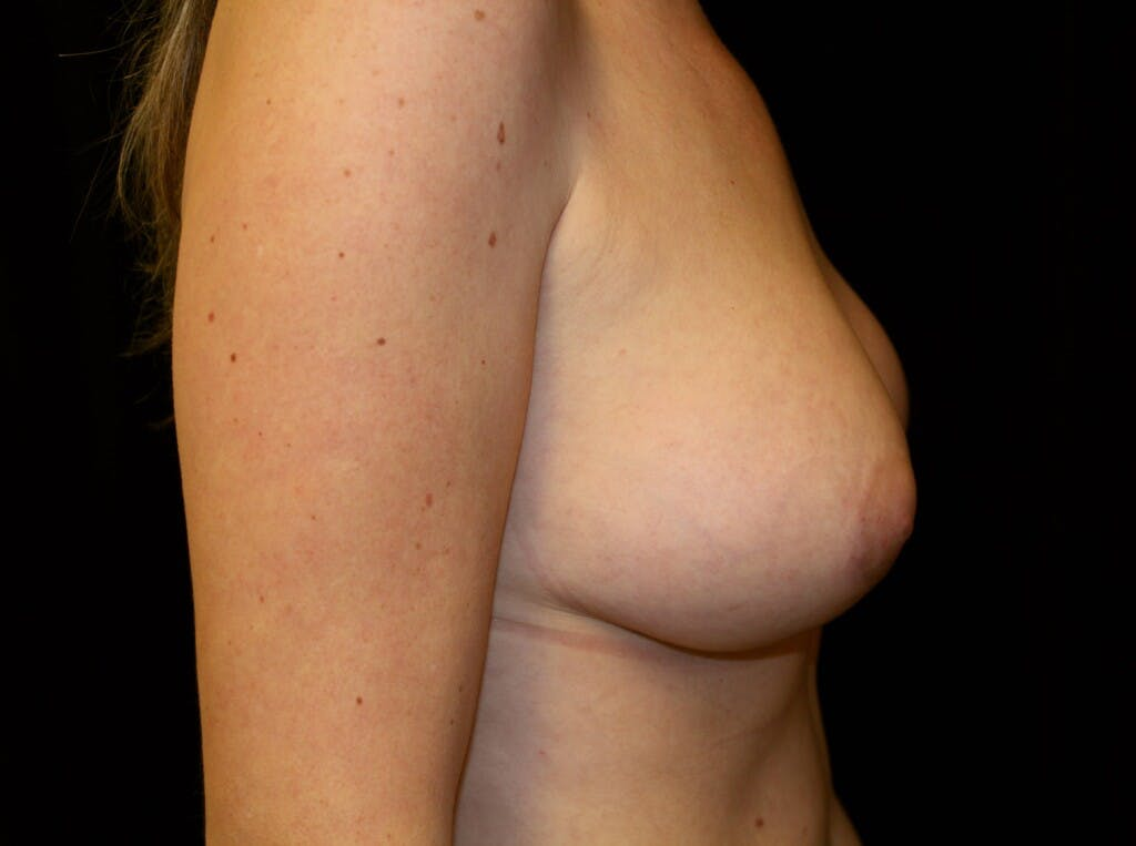 Breast Augmentation Gallery - Patient 39245556 - Image 6