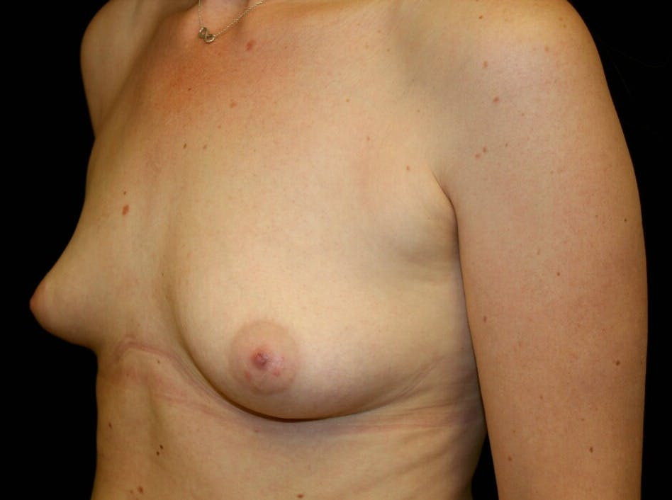 Breast Augmentation Gallery - Patient 39245556 - Image 7