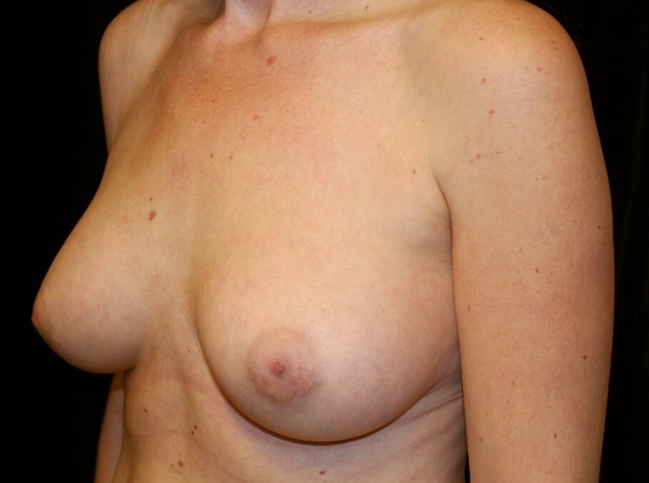 Breast Augmentation Gallery - Patient 39245556 - Image 8
