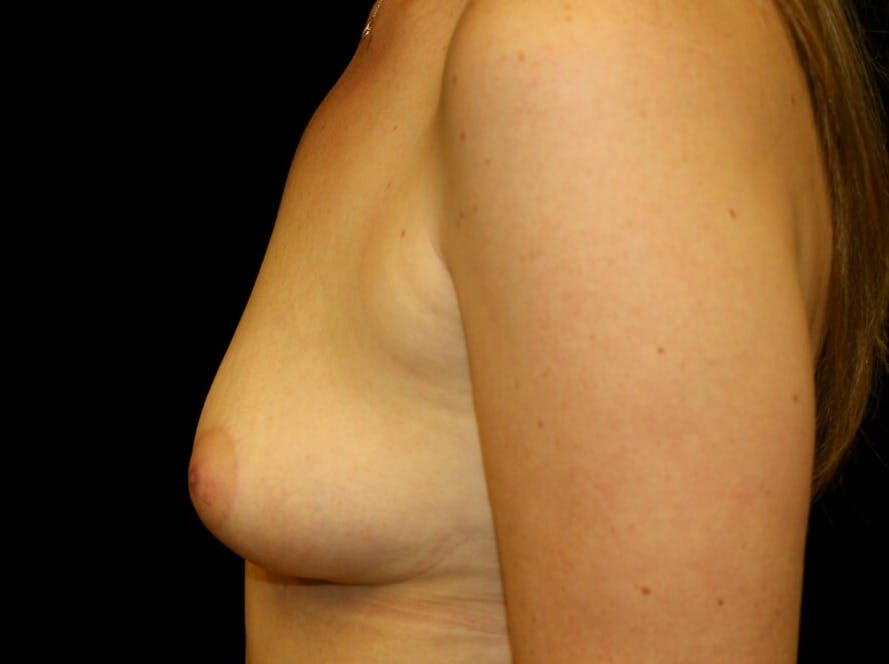 Breast Augmentation Gallery - Patient 39245556 - Image 9