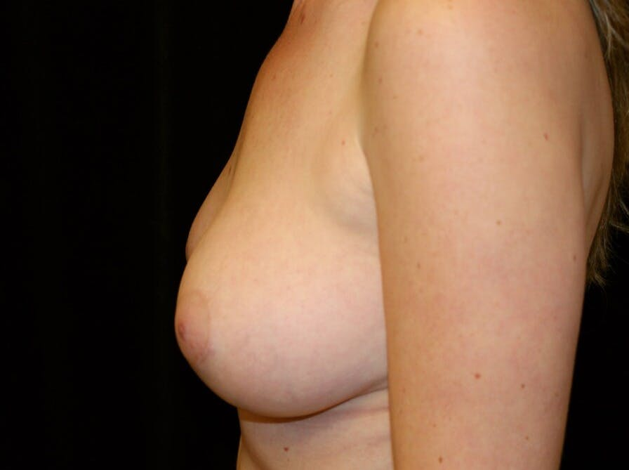 Breast Augmentation Gallery - Patient 39245556 - Image 10
