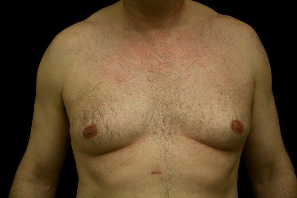 Gynecomastia Gallery - Patient 39245557 - Image 1