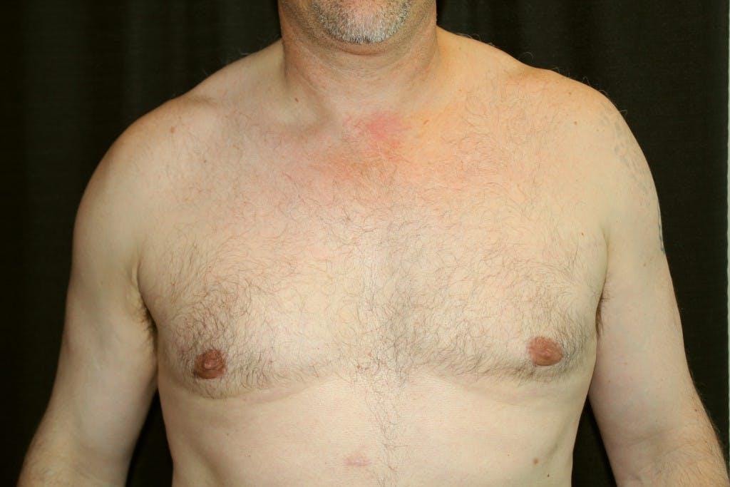 Gynecomastia Gallery - Patient 39245557 - Image 2
