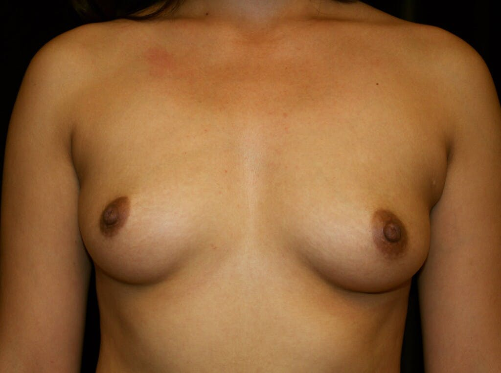 Breast Augmentation Gallery - Patient 39245558 - Image 1