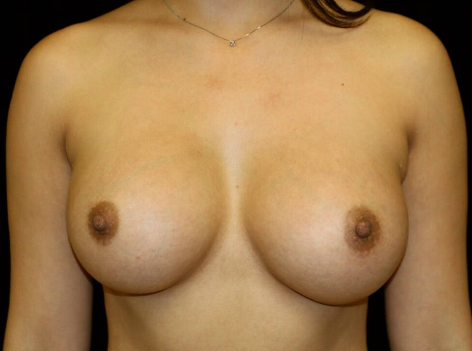 Breast Augmentation Gallery - Patient 39245558 - Image 2