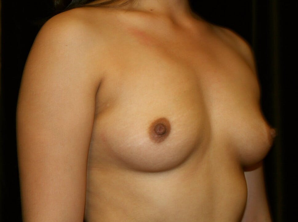 Breast Augmentation Gallery - Patient 39245558 - Image 3