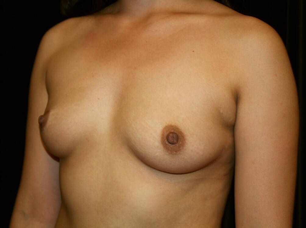Breast Augmentation Gallery - Patient 39245558 - Image 5