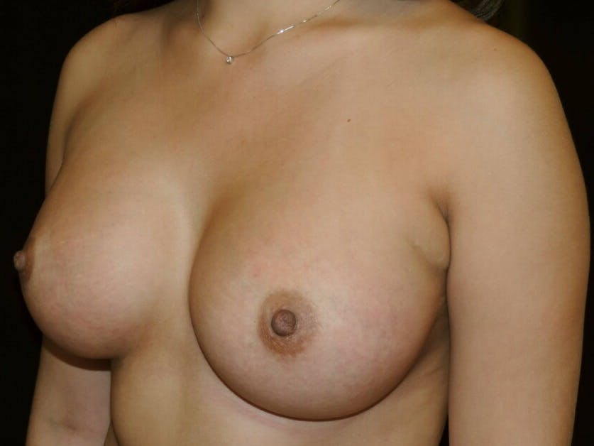 Breast Augmentation Gallery - Patient 39245558 - Image 6