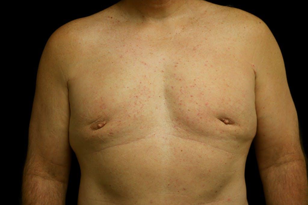 Gynecomastia Gallery - Patient 39245559 - Image 1