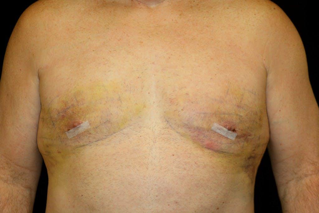 Gynecomastia Gallery - Patient 39245559 - Image 2
