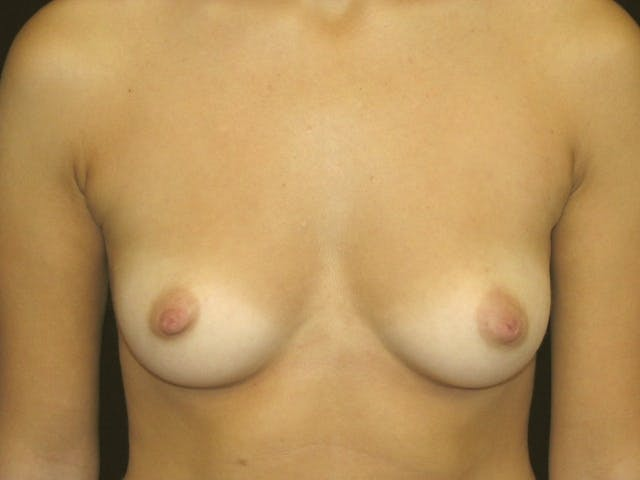 Breast Augmentation Gallery - Patient 39245560 - Image 1