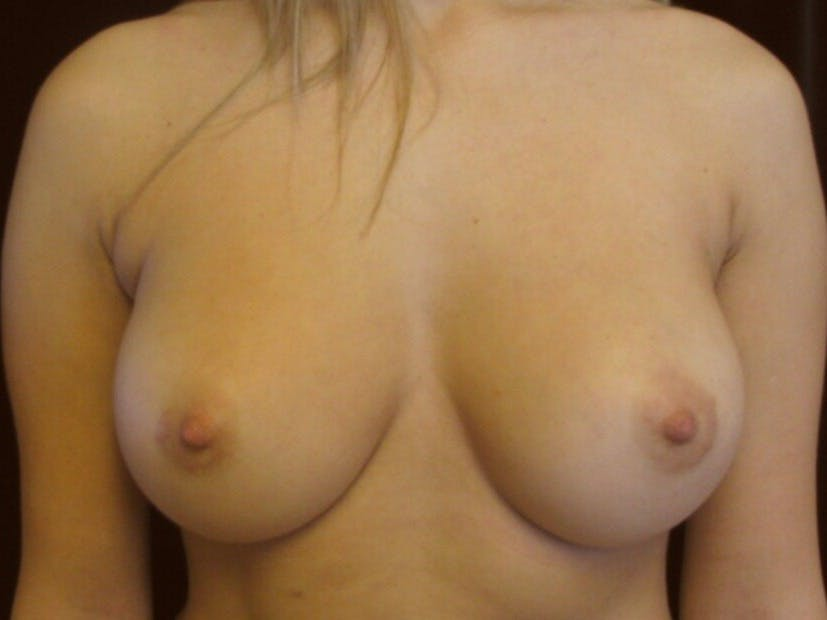 Breast Augmentation Gallery - Patient 39245560 - Image 2
