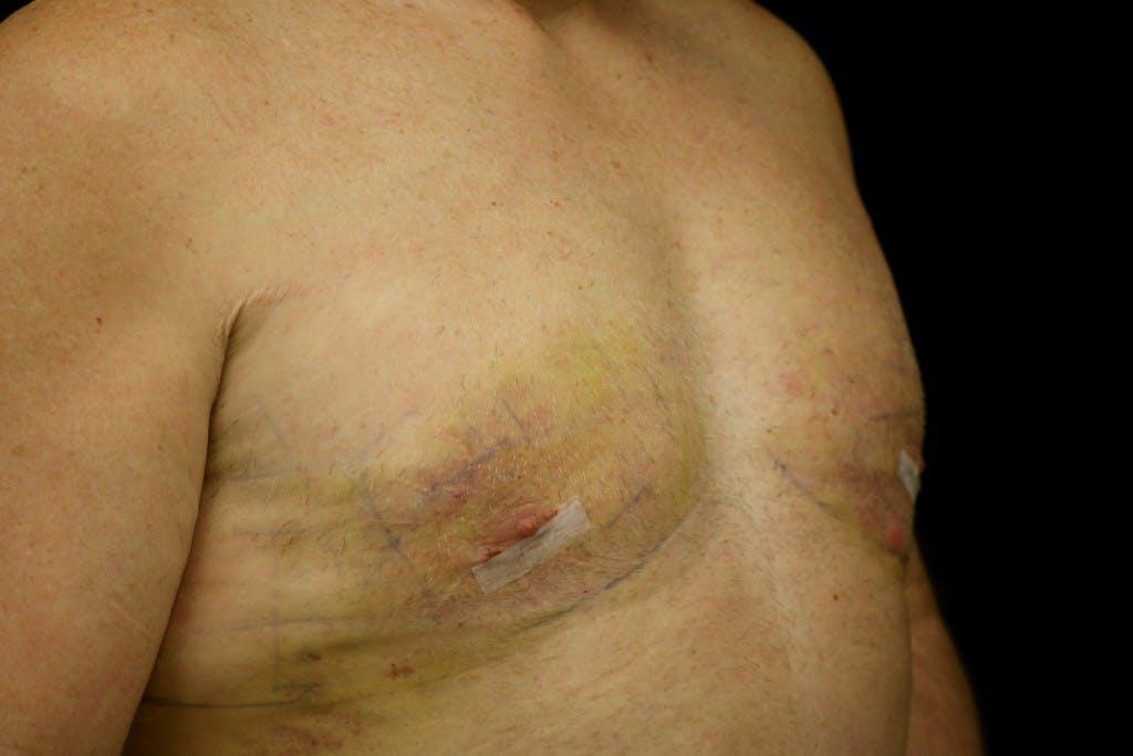 Gynecomastia Gallery - Patient 39245559 - Image 4