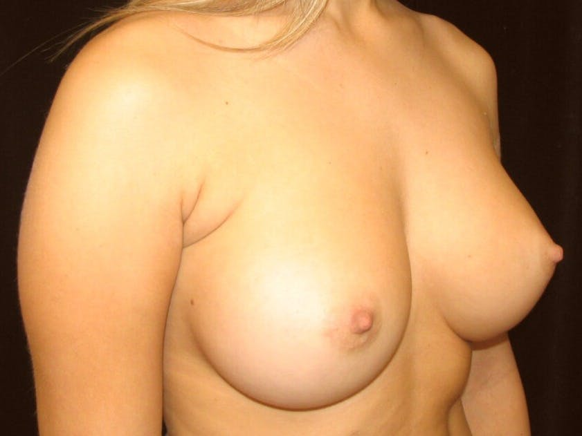 Breast Augmentation Gallery - Patient 39245560 - Image 4