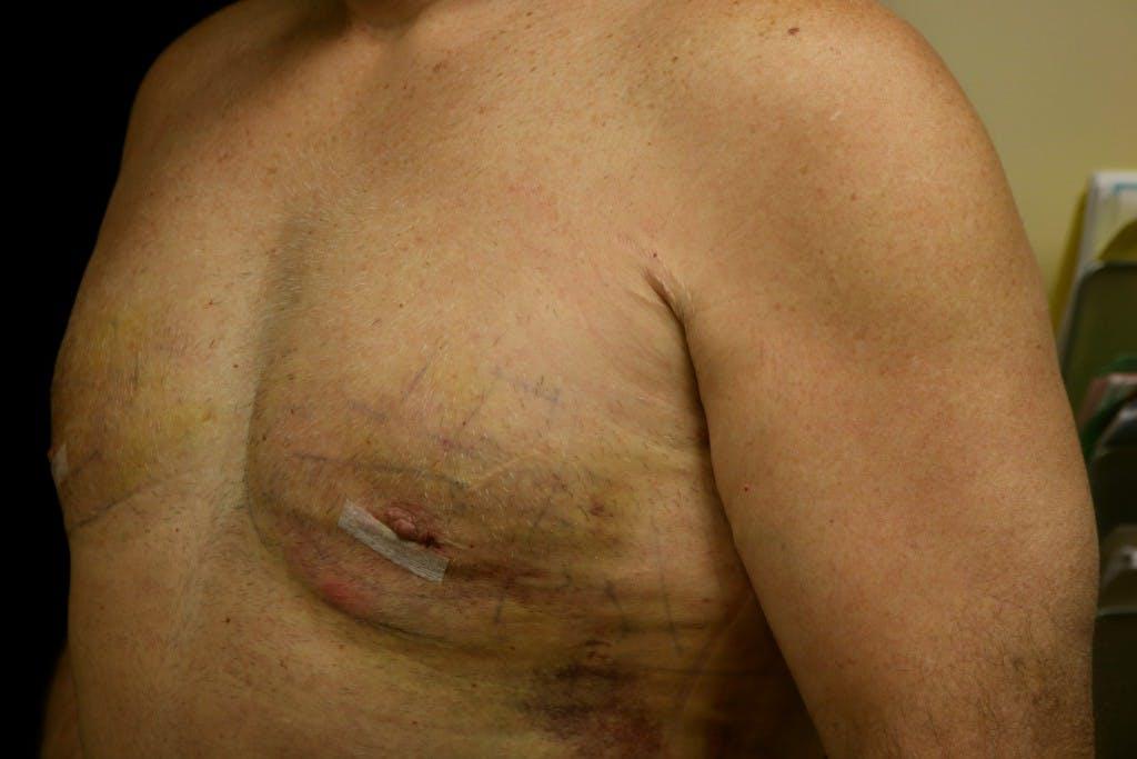 Gynecomastia Gallery - Patient 39245559 - Image 6