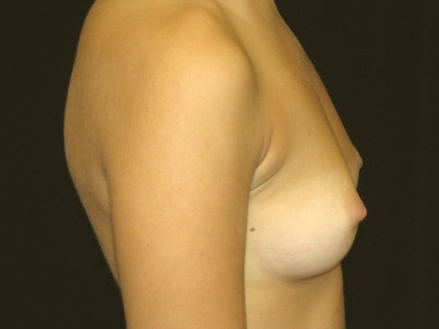 Breast Augmentation Gallery - Patient 39245560 - Image 5