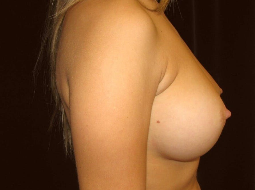 Breast Augmentation Gallery - Patient 39245560 - Image 6