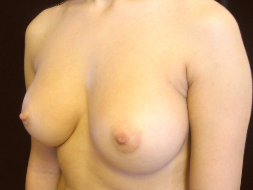 Breast Augmentation Gallery - Patient 39245560 - Image 7