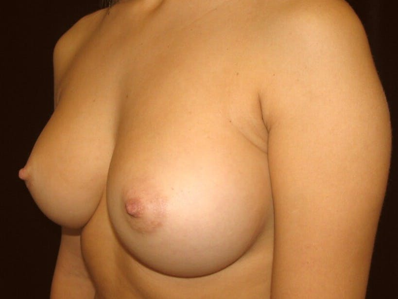 Breast Augmentation Gallery - Patient 39245560 - Image 8