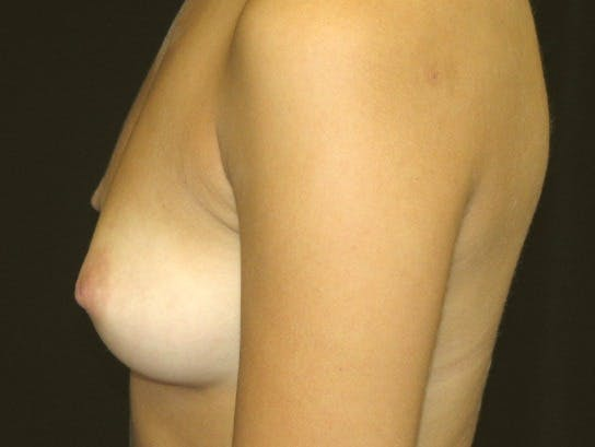 Breast Augmentation Gallery - Patient 39245560 - Image 9