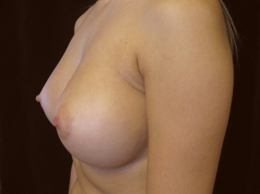 Breast Augmentation Gallery - Patient 39245560 - Image 10