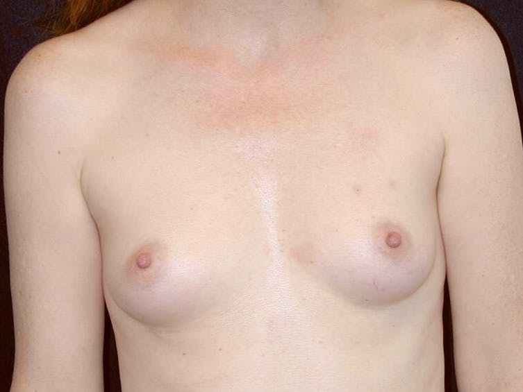 Breast Augmentation Gallery - Patient 39245566 - Image 1