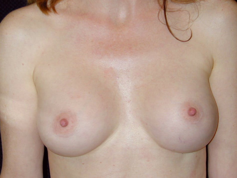 Breast Augmentation Gallery - Patient 39245566 - Image 2