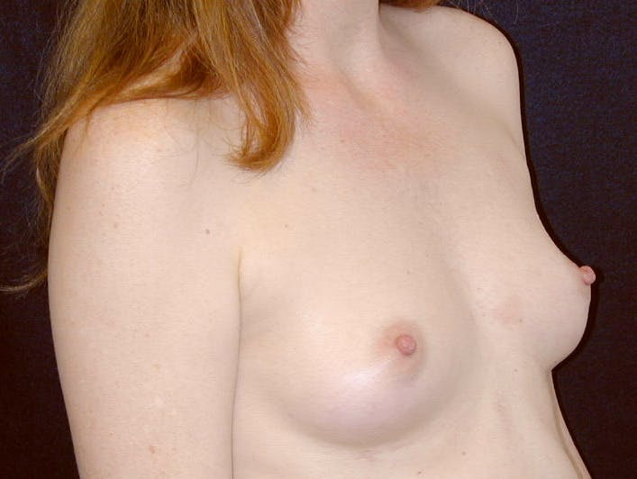 Breast Augmentation Gallery - Patient 39245566 - Image 3