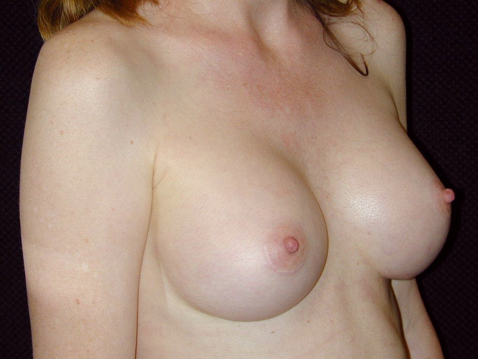 Breast Augmentation Gallery - Patient 39245566 - Image 4