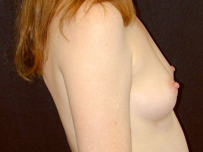 Breast Augmentation Gallery - Patient 39245566 - Image 5
