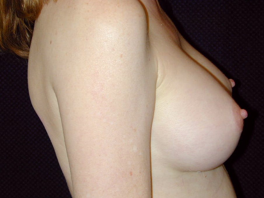 Breast Augmentation Gallery - Patient 39245566 - Image 6