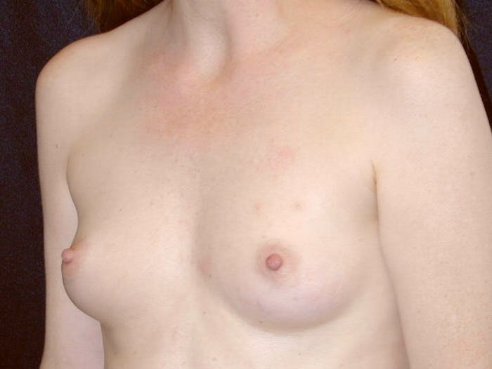 Breast Augmentation Gallery - Patient 39245566 - Image 7