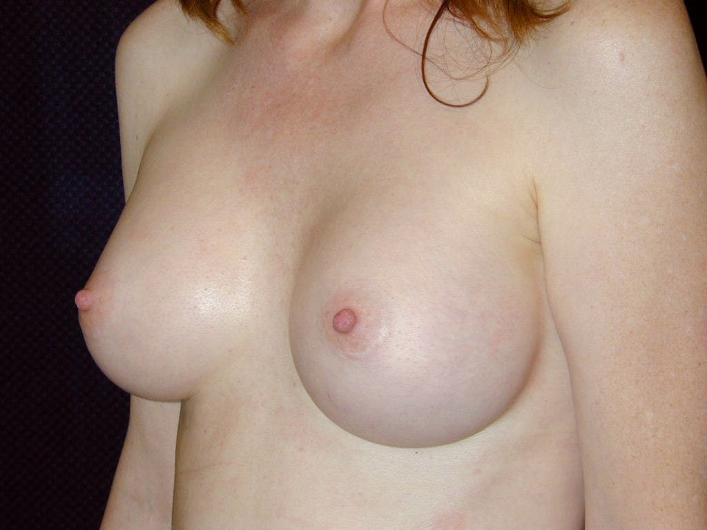 Breast Augmentation Gallery - Patient 39245566 - Image 8