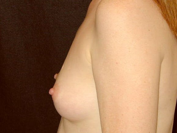 Breast Augmentation Gallery - Patient 39245566 - Image 9