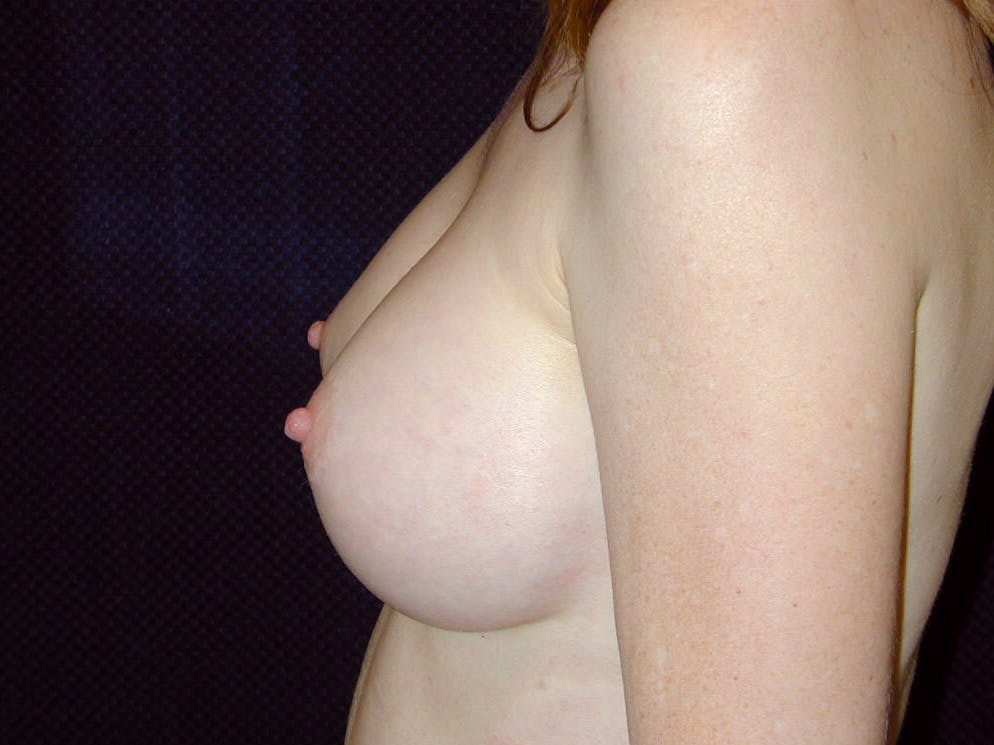 Breast Augmentation Gallery - Patient 39245566 - Image 10