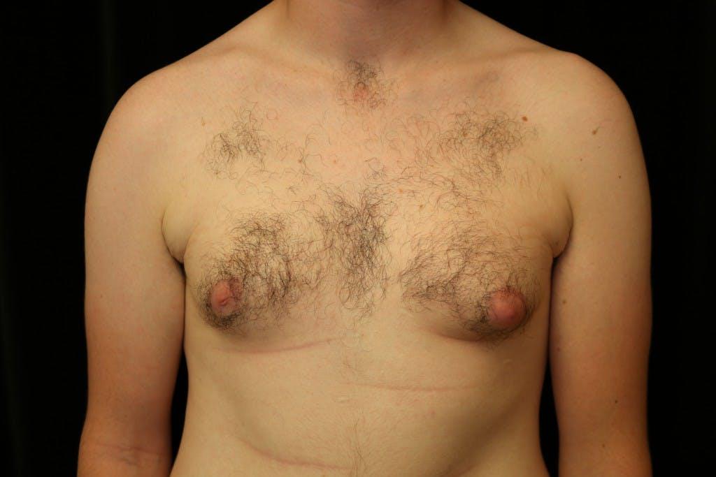 Gynecomastia Gallery - Patient 39245573 - Image 1