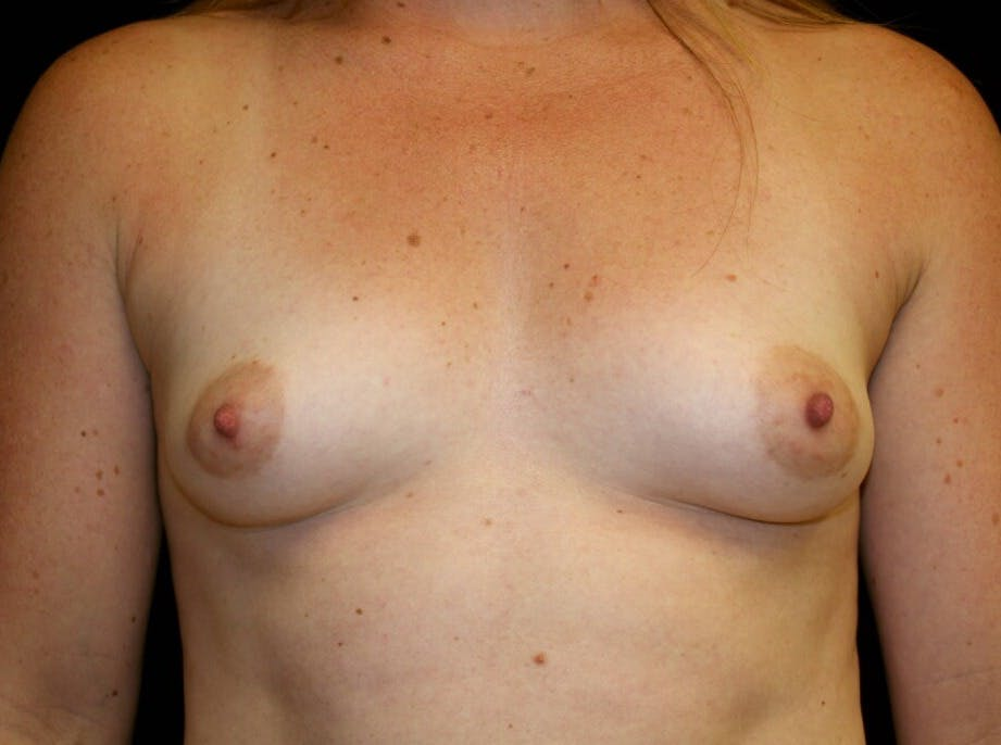 Breast Augmentation Gallery - Patient 39245575 - Image 1