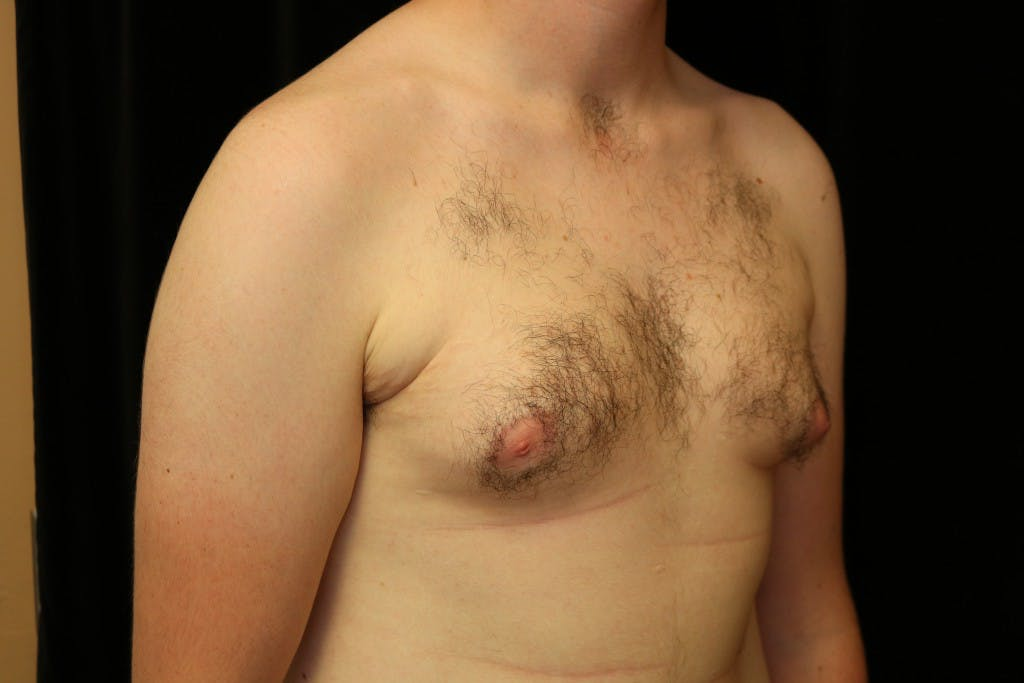Gynecomastia Gallery - Patient 39245573 - Image 3