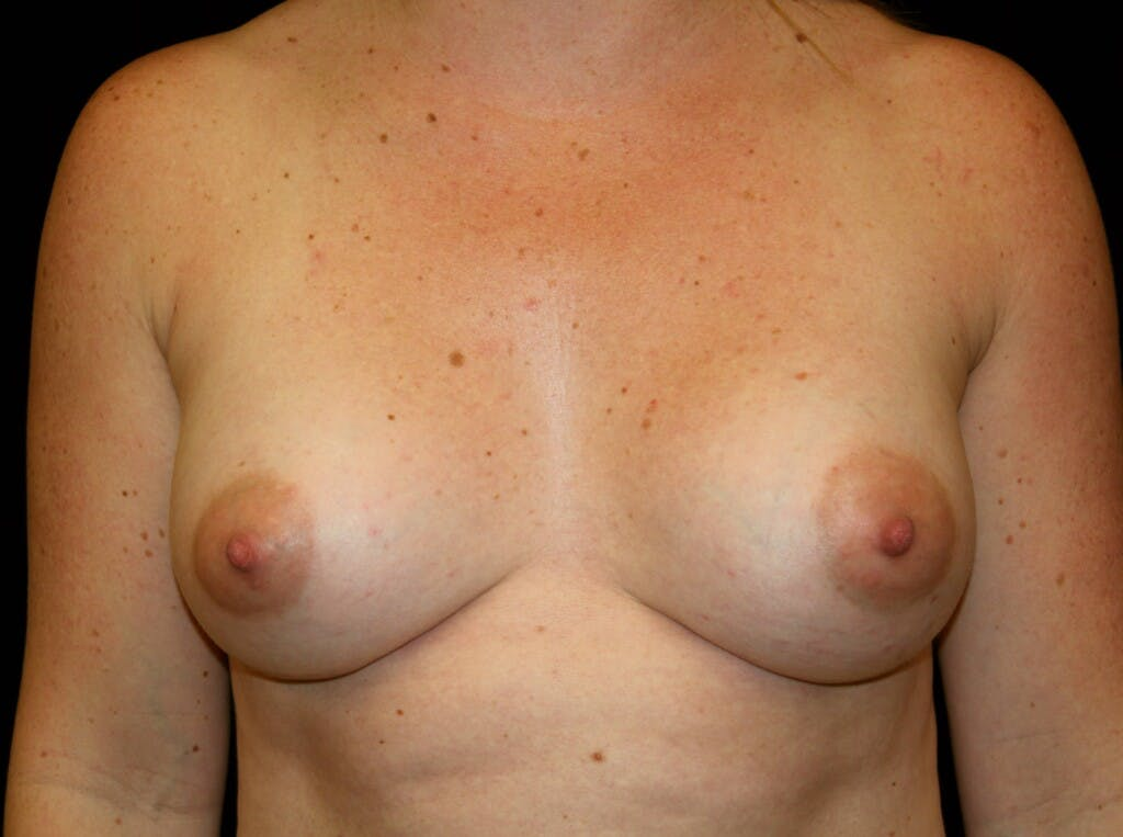 Breast Augmentation Gallery - Patient 39245575 - Image 2