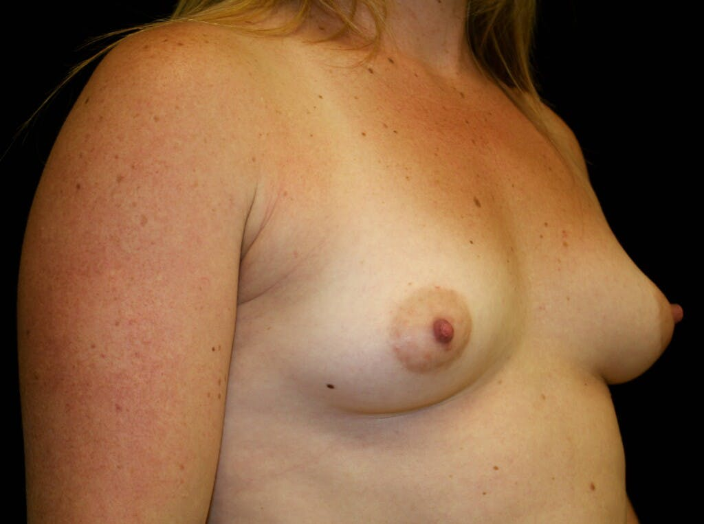 Breast Augmentation Gallery - Patient 39245575 - Image 3