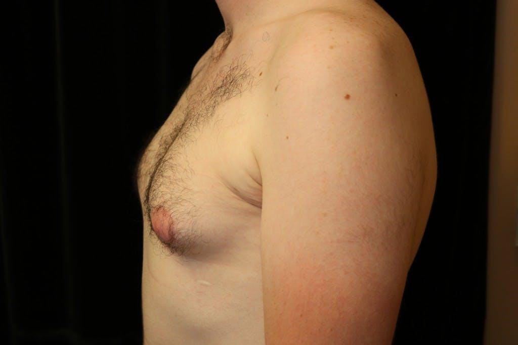 Gynecomastia Gallery - Patient 39245573 - Image 5