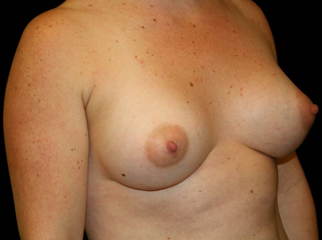 Breast Augmentation Gallery - Patient 39245575 - Image 4