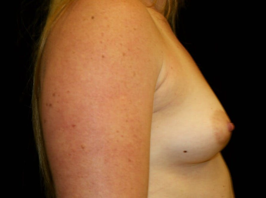 Breast Augmentation Gallery - Patient 39245575 - Image 5