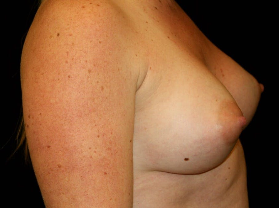 Breast Augmentation Gallery - Patient 39245575 - Image 6