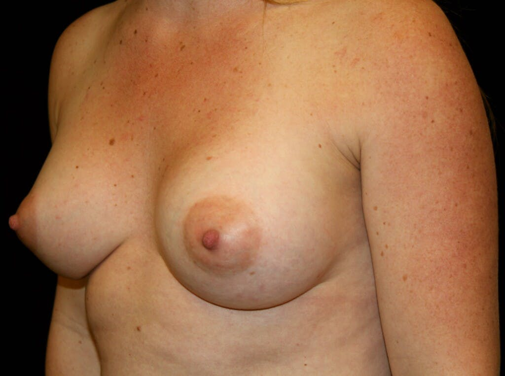 Breast Augmentation Gallery - Patient 39245575 - Image 8