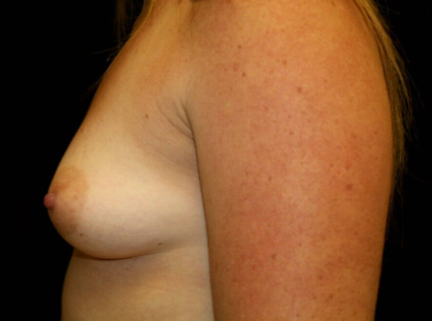 Breast Augmentation Gallery - Patient 39245575 - Image 9